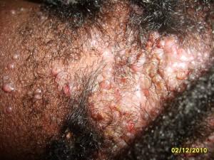 acneKeloidalis