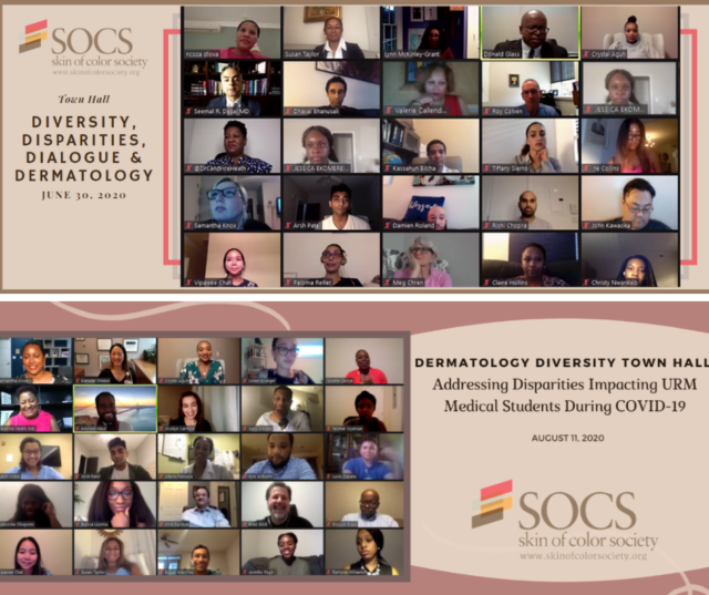 SOCS Fosters Virtual Connection through the Dermatology Diversity Town Hall Series-banner-image