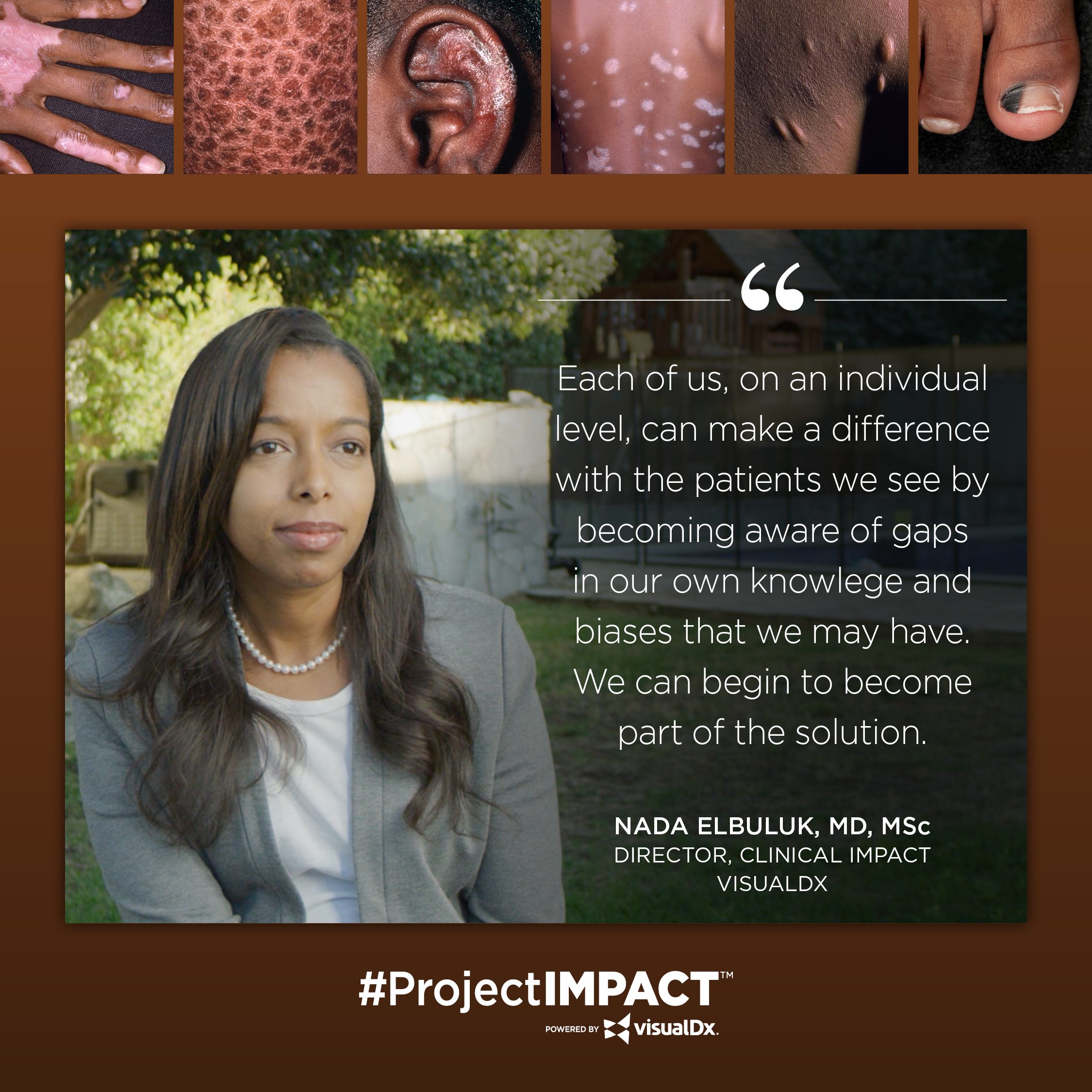 Reducing Healthcare Disparities, Bridging Gaps of Knowledge and Improving Outcomes for Patients of Color through Project IMPACT-banner-image